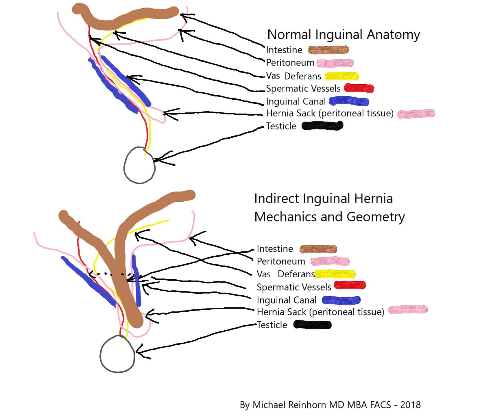 Direct hernia anatomy